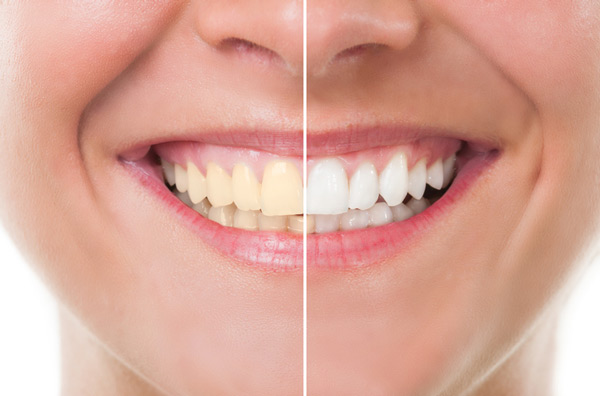 Before and after photo of teeth whitening treatment from Jeanette Thai, DDS